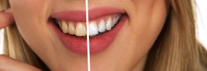 tooth-whitening-before-after